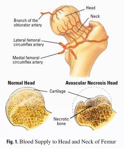 Асептична некроза на бедрената глава